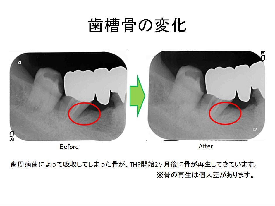 歯槽骨の変化