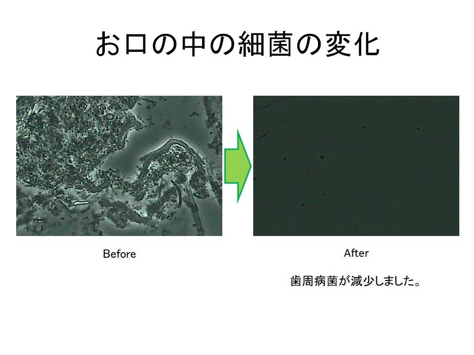 お口の中の細菌の変化
